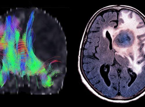 درمان سرطان مغز به کمک ویروس