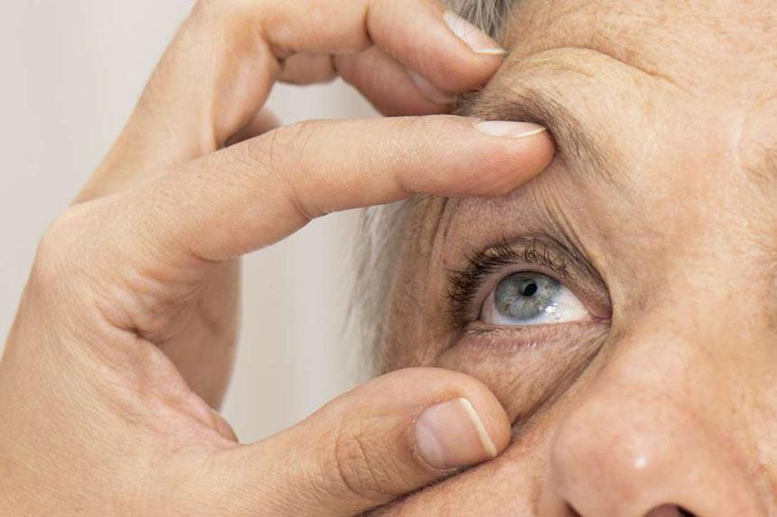 گلوکوم یا آب سیاه چشم-دکترتو