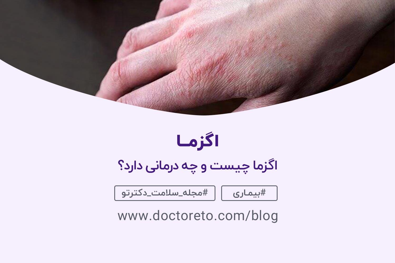 بیماری اگزما