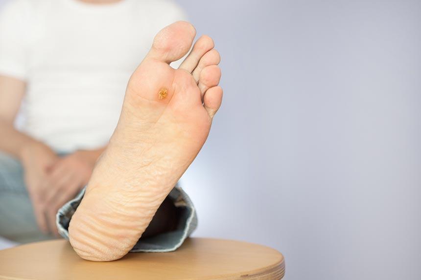 زخم پای دیابتی-دکترتو