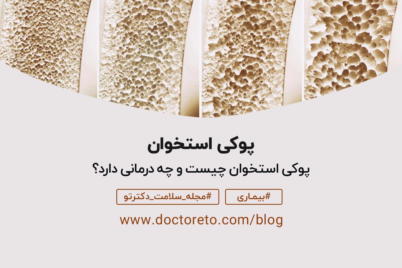 دلایل پوکی استخوان چیست؟