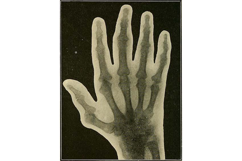 عکس رادیولوژی دست یک بیمار مبتلا به نقرس