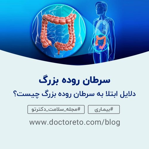 سرطان روده بزرگ