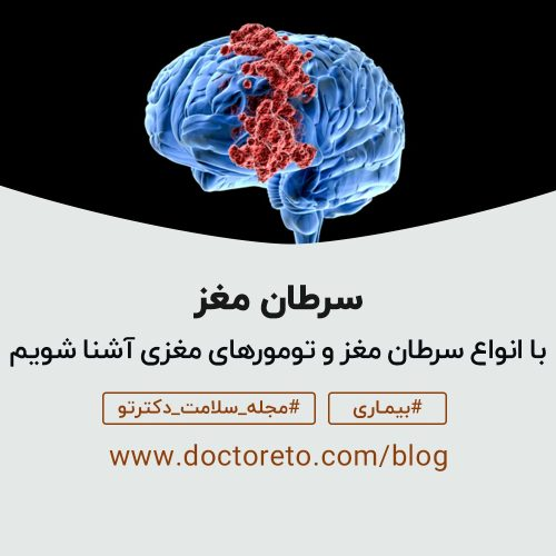 سرطان مغزی