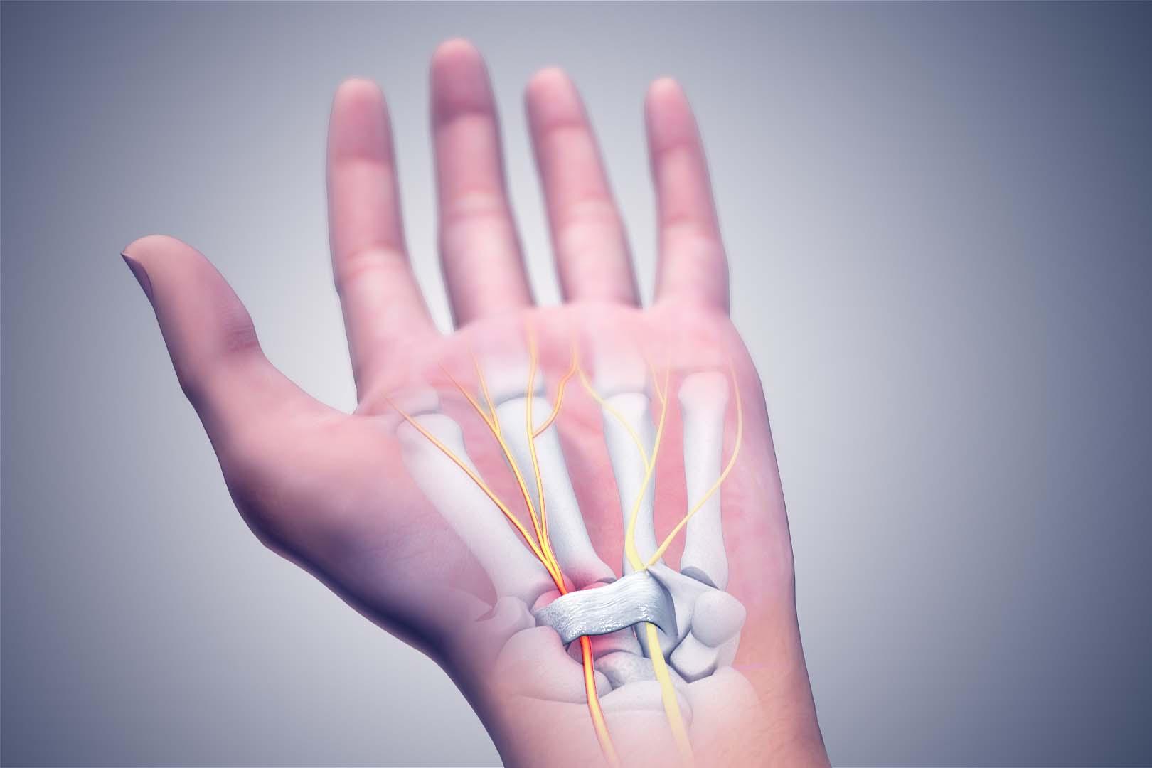 سندروم تونل کارپال در نتیجه تحت فشار قرار گرفتن یکی از اعصاب اصلی دست (عصب مدین) در مسیر عبورش از مچدست، بهوجود میآید.