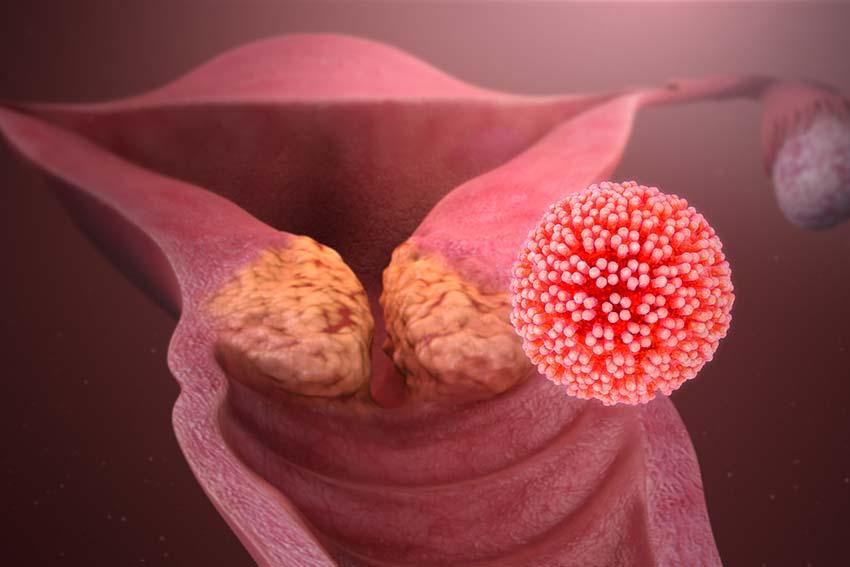 ویروس HPV ممکن است باعث انواع سرطان، از جمله سرطان دهانه رحم شود.