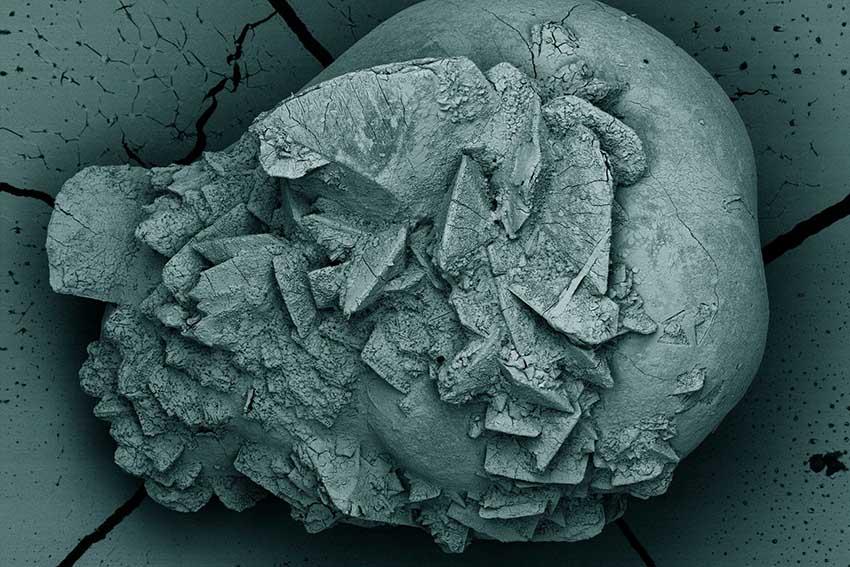 تصویر یک سنگ کلیه به قطر تقریبی 2 میلیمتر که با استفاده از یک میکروسکوپ الکترونی ثبت شده است.