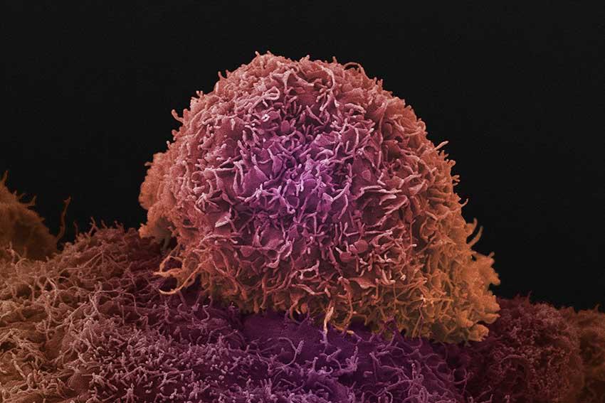 تصویر یک سلول سرطانی در پروستات که توسط یک میکروسکوپ الکترونی ثبت شده است.