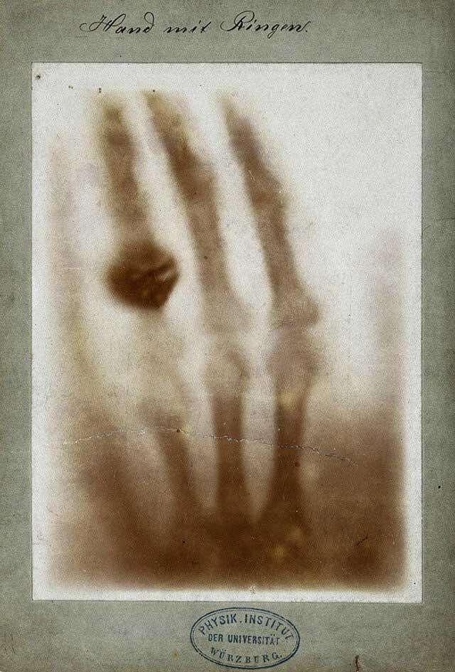 تصویر برداری و رادیولوژی دکترتو