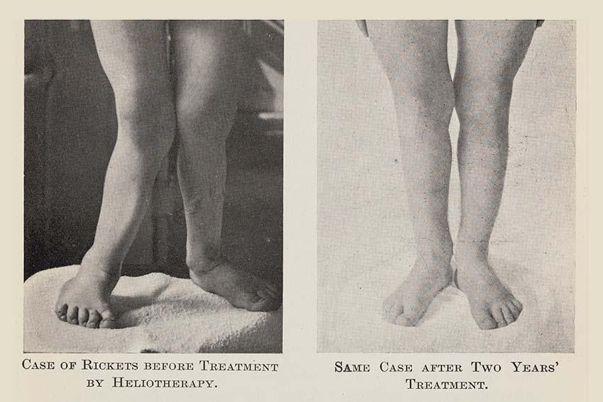 چپ: فردی مبتلا به راشیتیسم. راست: همان فرد بعد از دو سال درمان. پاها کاملا صاف شدهاند.