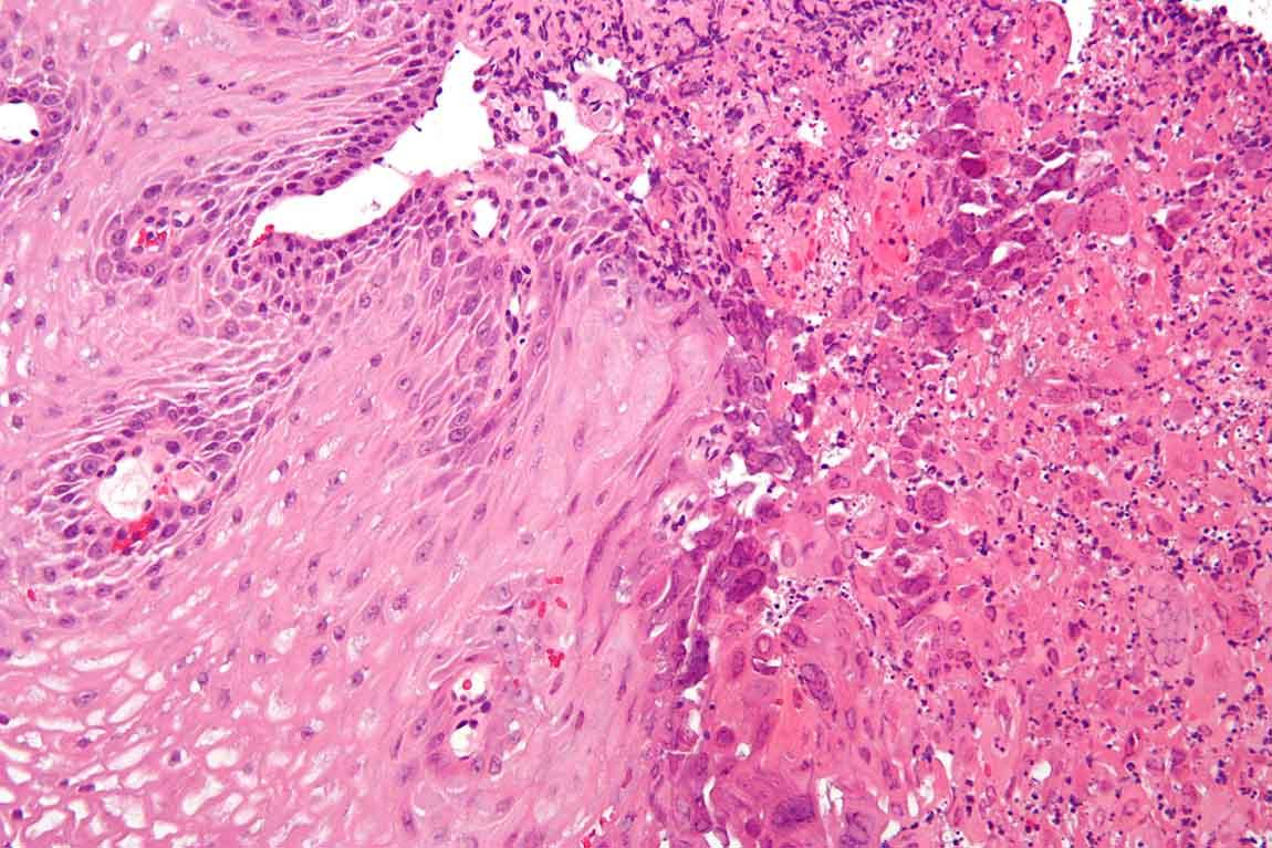 ساختار سلولی ویروس تبخال تناسلی