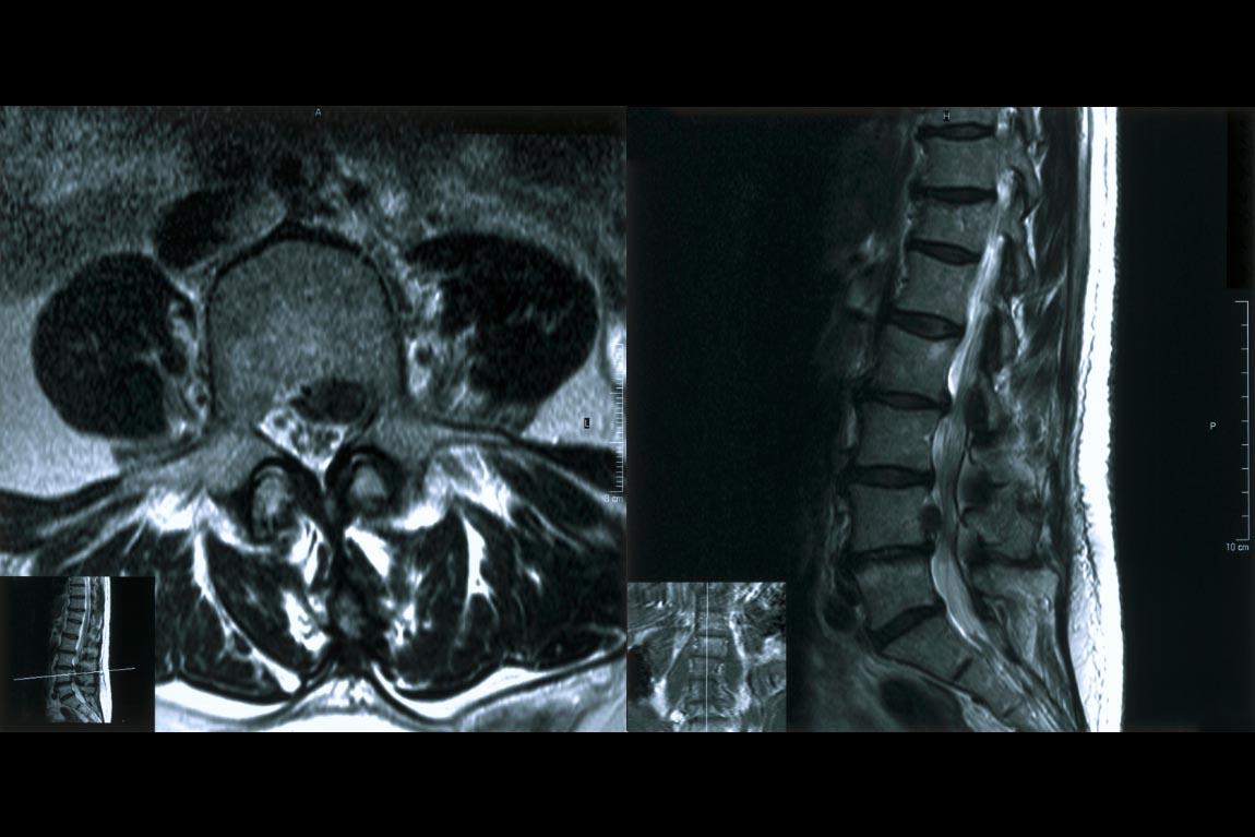 معمولا سیاتیک، به درد در مسیر عصب سیاتیک، که شاخههای آن از ناحیهی تحتانی کمر شروع شده و از طریق لگن و باسن به پاها کشیده شده، گفته میشود. به طور معمول، سیاتیک فقط در یک طرف بدن تأثیر میگذارد.