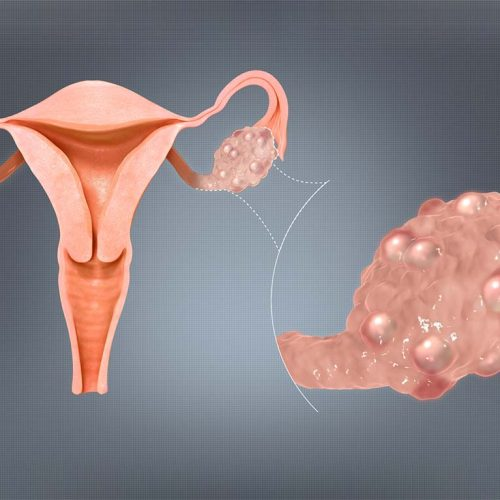 تنبلی تخمدان یا سندرم تخمدان پلی کیستیک - دکترتو