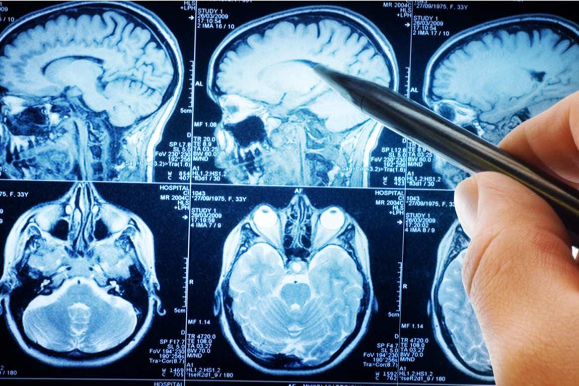 اسکن-مغز-و-سکته-مغزی