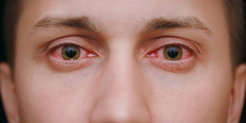 نفازولین درمان قرمزی چشم