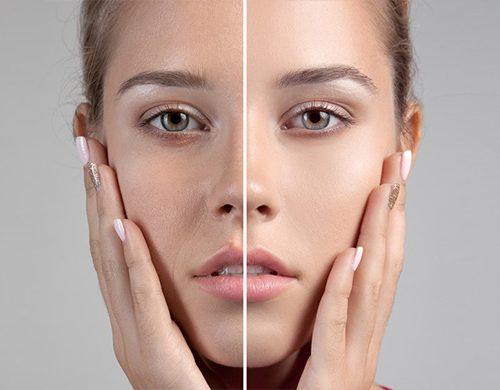 کلاژن و زیبایی پوست