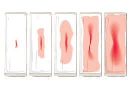 میزان-خونریزی-واژینال