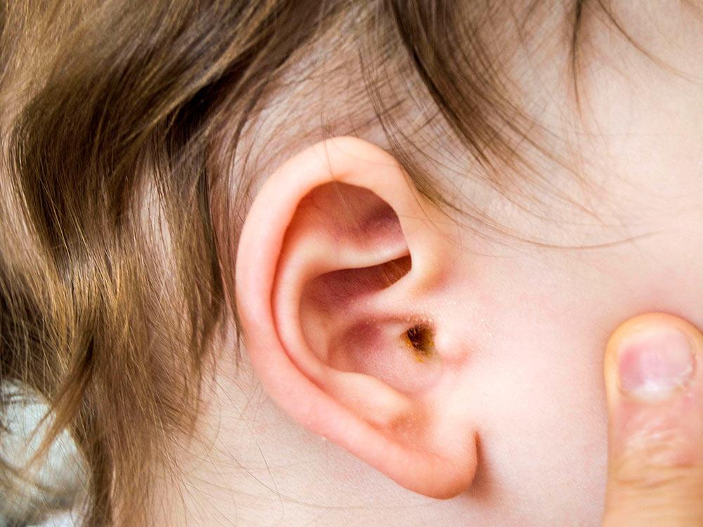 ترشح-گوش