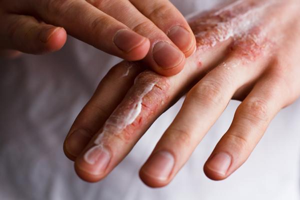 حساسیت-پوستی-کرونا