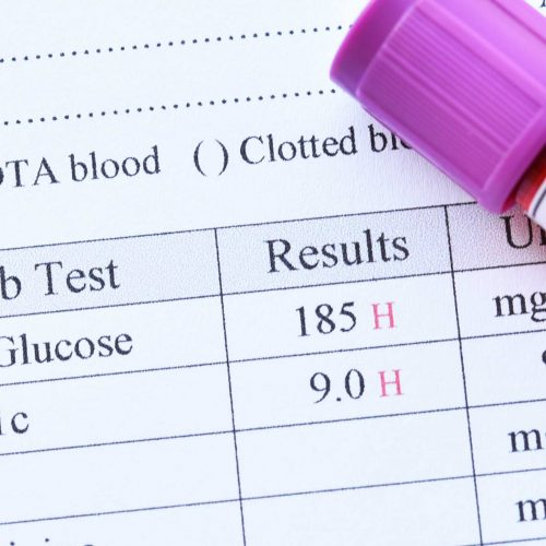 blood-suger-test-results
