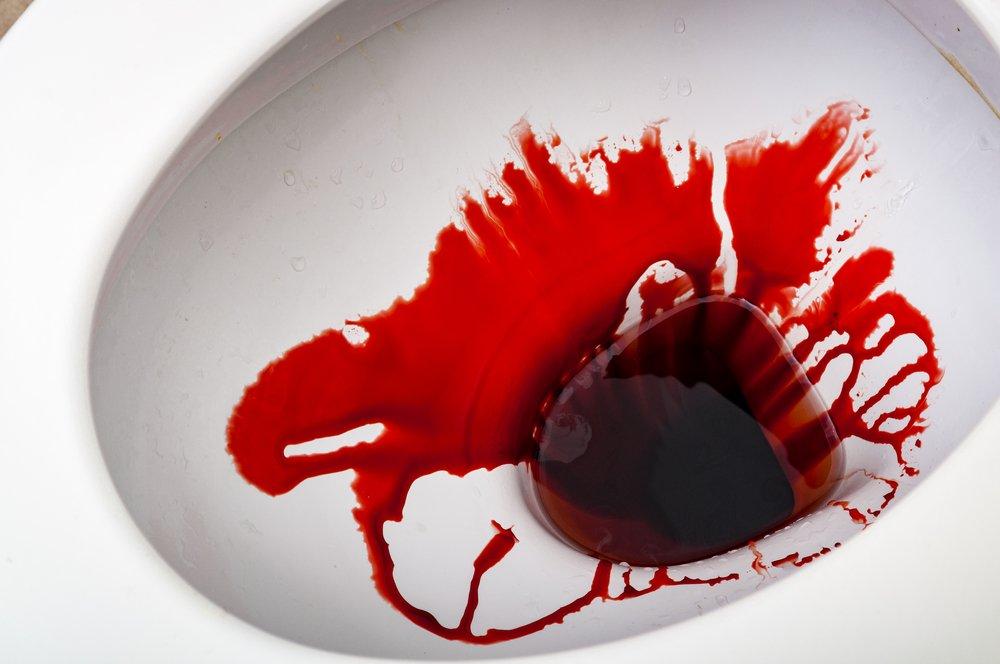 Bloody-Stools