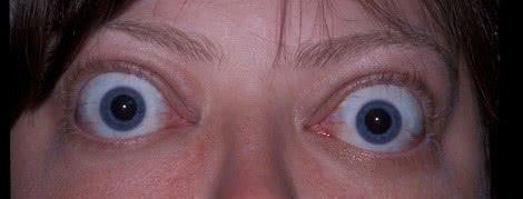 بیماری-برون-چشمی