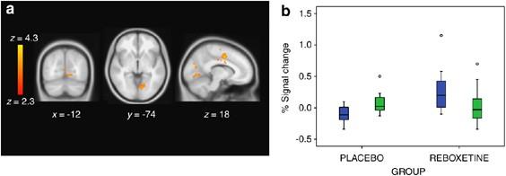 تاثیر-ربوکستین-بر-مغز