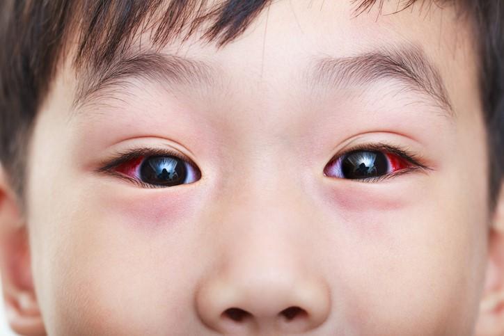 ورم-چشم-کودکان