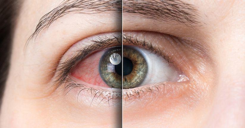 علائم-خشکی-چشم