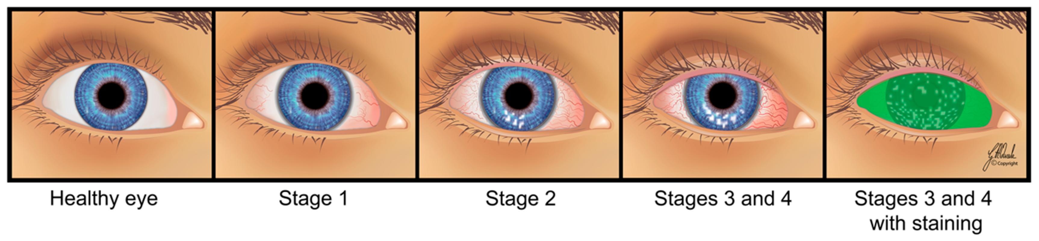 مراحل-خشکی-چشم