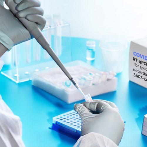 آزمایشگاه-تست-کرونا