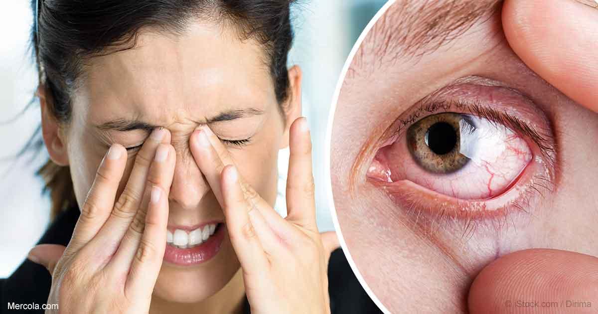 علت-خشکی-چشم