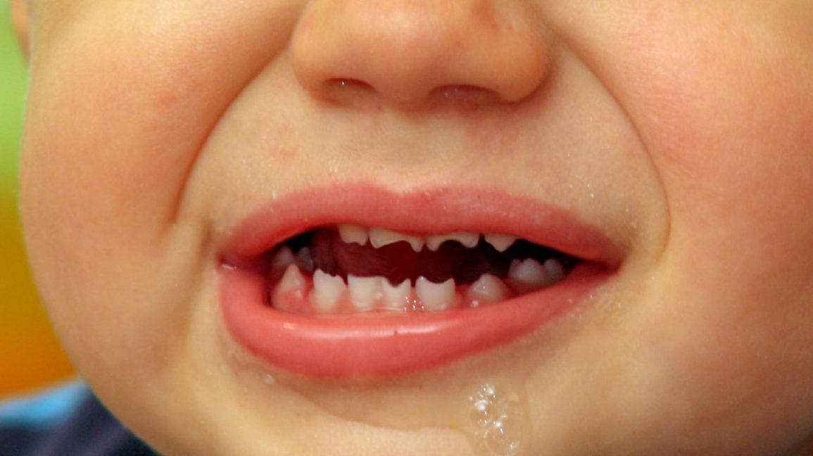 دندان هاچینسون از علائم سفلیس مادرزادی
