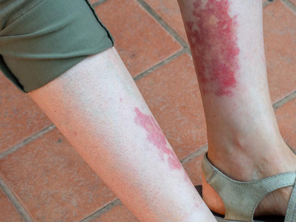 واسکولیت از بیماری های مربوط به روماتولوژی