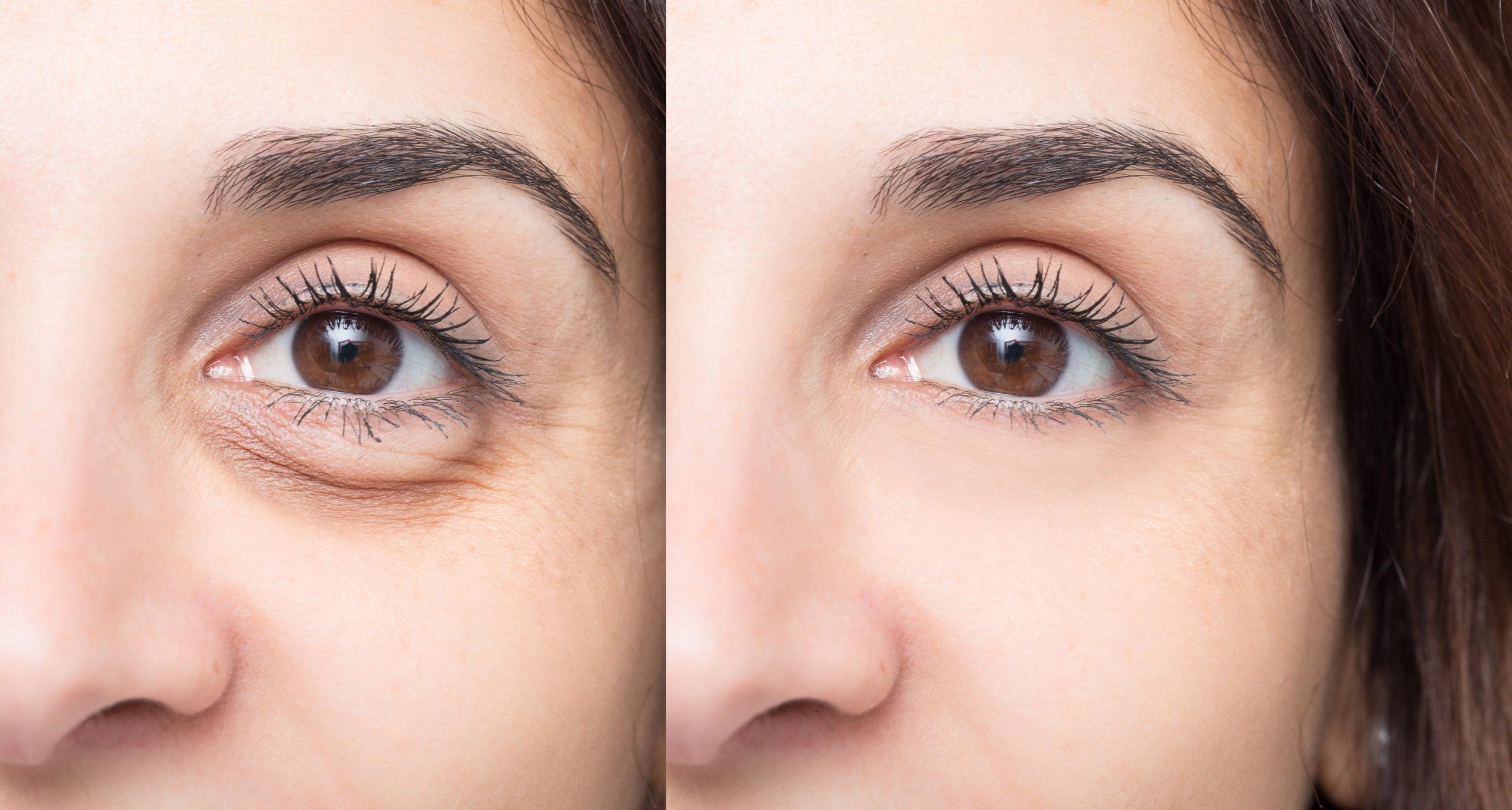 کربوکسی تراپی و ترمیم گودی زیر چشم و پلک ها