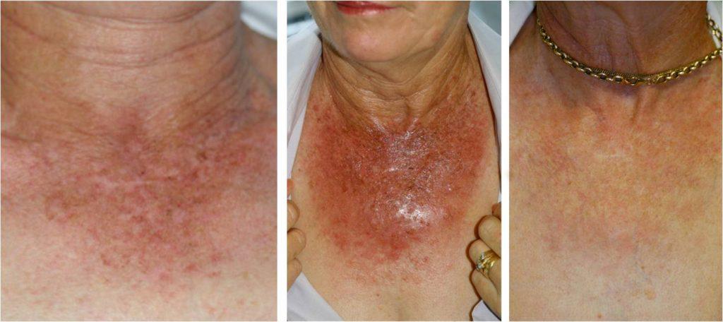 آفتاب سوختگی - یکی از انواع آسیب پوستی
