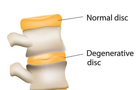 دیسک دژنراتیو در ستون مهره ها