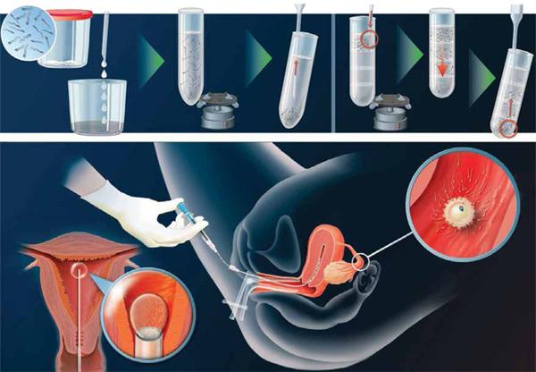 embryotransfer