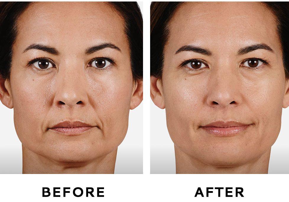 تاثیر پرکننده های پوست بر جوانسازی پوست