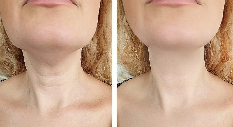 قبل از تزریق بوتاکس گردن و بعد از آن