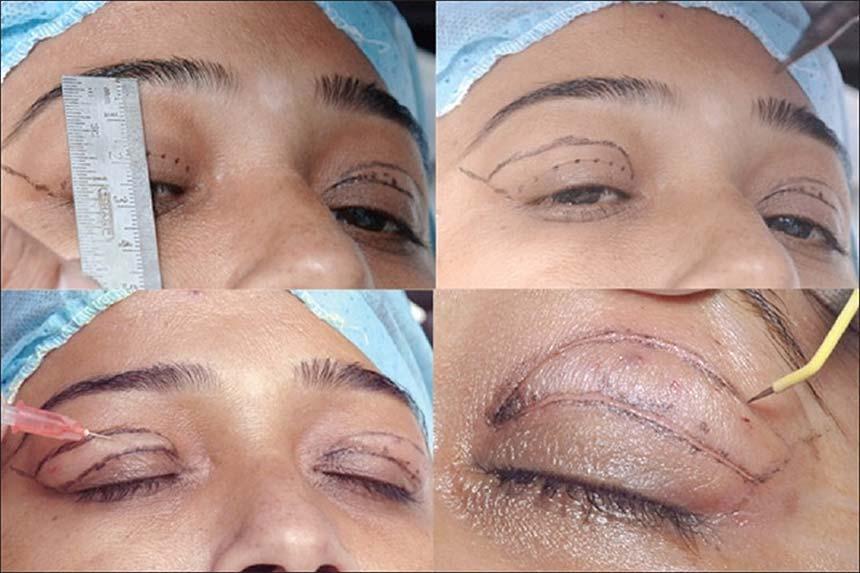 مراحل-جراحی-پلک