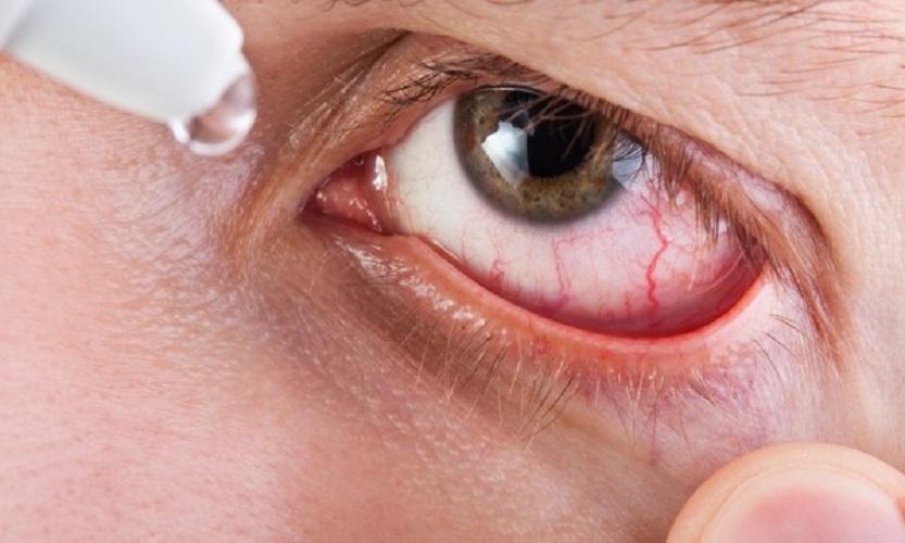 Eye-Redness-Corona