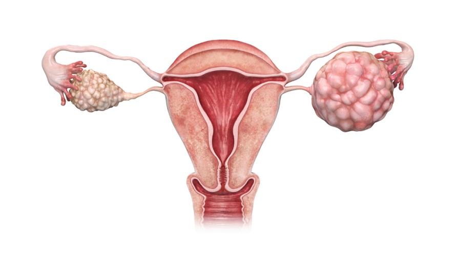 سندروم تخمدان پلیکیستیک شایعترین عامل ناباروری در زنان است.