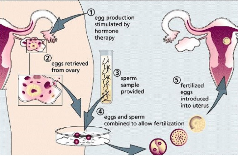 assisted-reproductive-technology