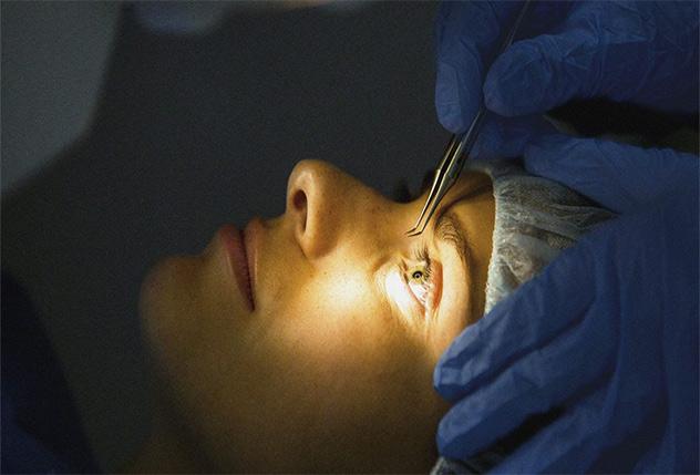 انجام-عمل-لیزر-چشم