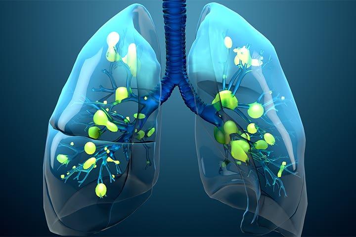 بهبودی آسیب ریه بعد از کرونا
