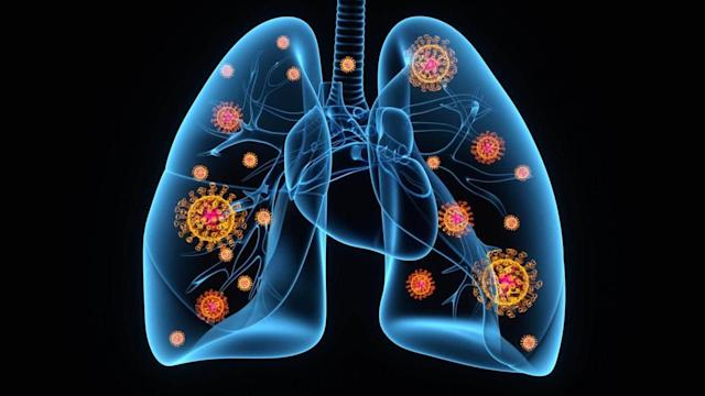 lungs-in-covid