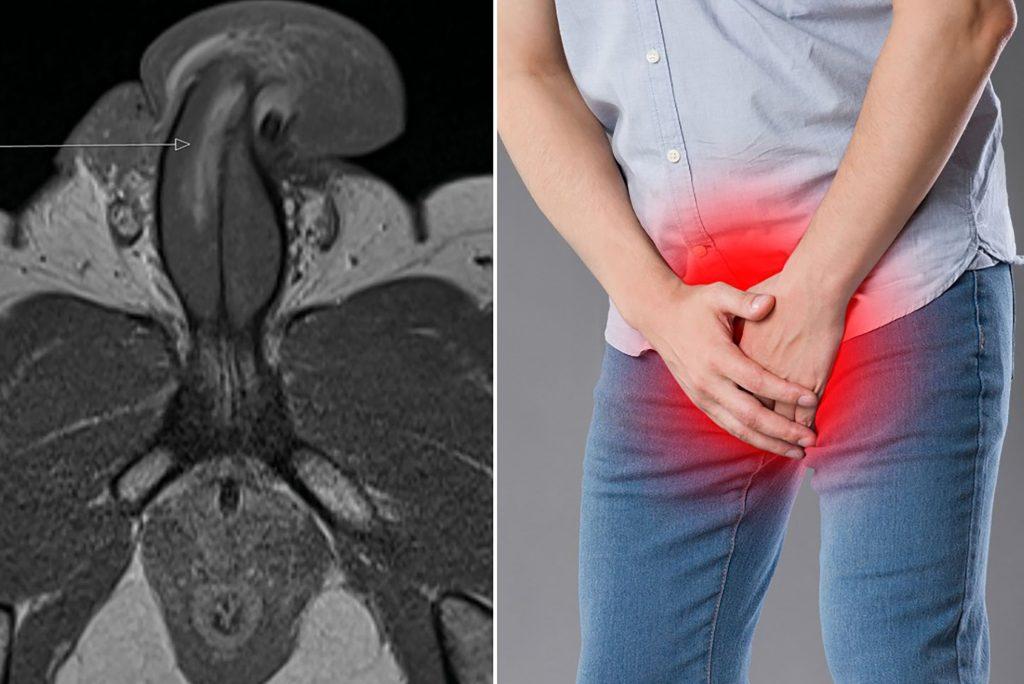penis-fracture-treatment