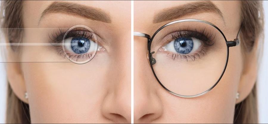 جراحی-لیزیک-چشم-چیست؟