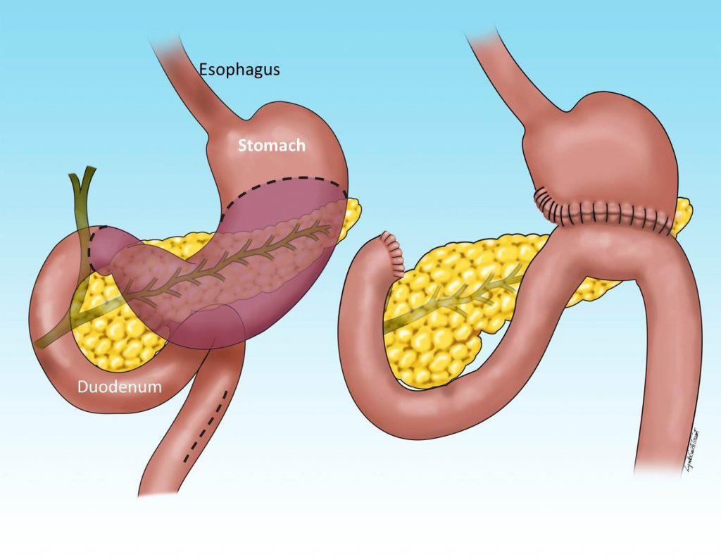 جراحی-سرطان-معده